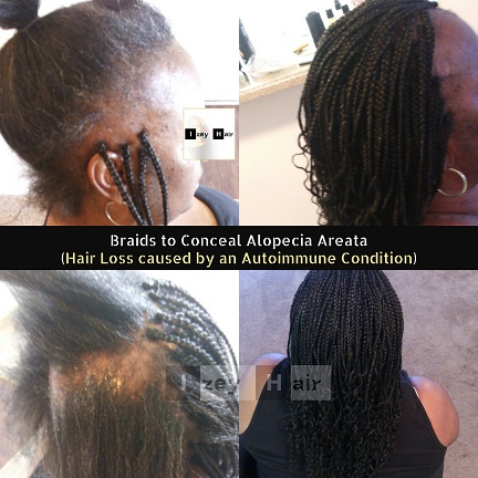 Braids to Conceal Alopecia Areata (Hair Loss caused by an Autoimmune Condition)