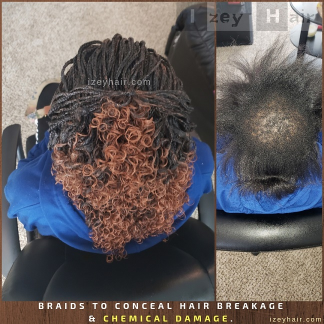 Braids to Conceal Hair Breakage and Chemical Damage.
