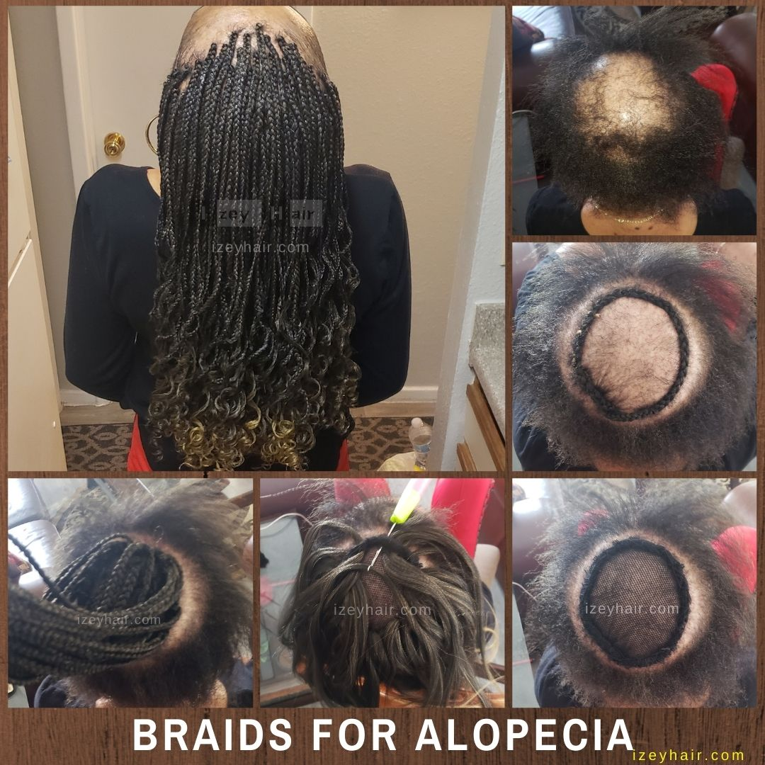 Braids for Alopecia