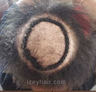 Braids for Alopecia - Izey Hair - Step 1